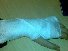 Неадекватный посетитель поломал врачу палец