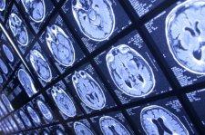 Последствия ливня: кременчужанка получила сотрясение мозга