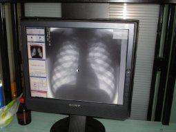 В Кременчугских больницах заработают новые флюорограф и рентгенаппарат
