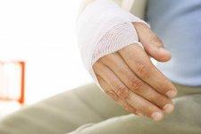 На Раковке мужчине в драке сломали руку